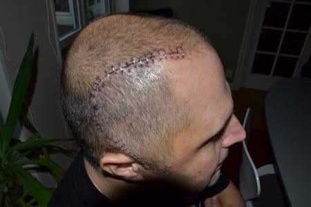 Roger blev opererad för hjärntumören han tror orsakades av strålningen ifrån radioutrustningen