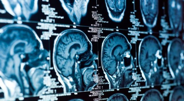 Stor ökning av hjärntumörpatienter i Sverige