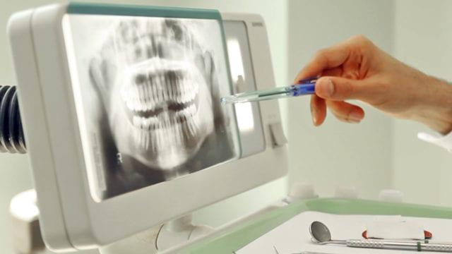 Tandvårdsskadeförbundet vill få bort metaller ur tandvården