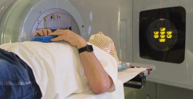 Kraftig ökning av antalet patienter med hjärntumör i Sverige
