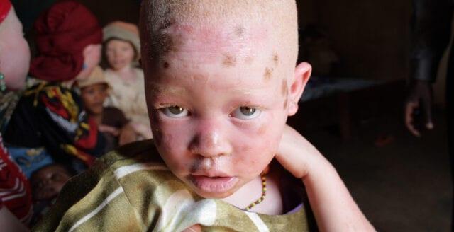 Amnesty: Säkerheten måste förbättras för albinos i södra Afrika