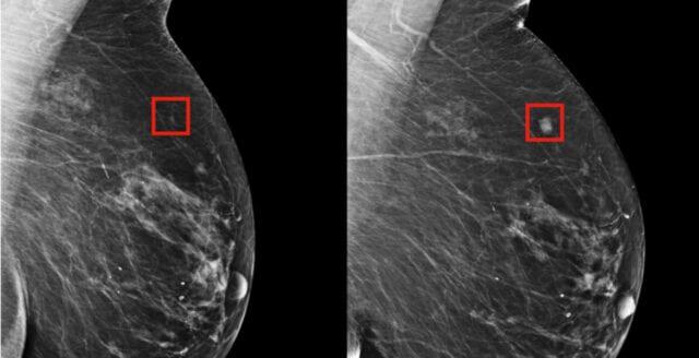 Googles nya AI kan upptäcka bröstcancer bättre än läkare