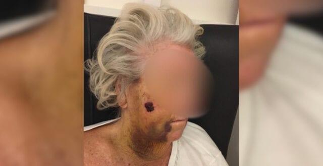 92-årig kvinna rånad och svårt misshandlad