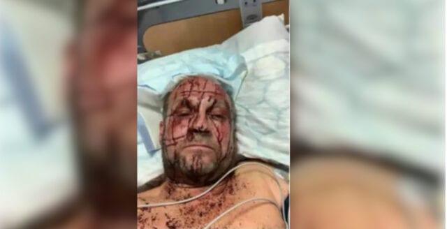 Inbrottstjuvar misshandlade Tommy med kofot – gärningsmännen talade med brytning